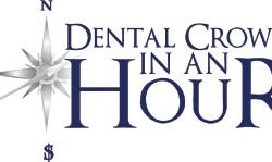 Dental Crown In An Hour Fort Myers - Naples, FL - Health & Beauty